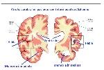 Cerebro normal vs cerebro Alzheimer