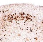 Ovillos proteína Tau