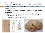 malformaciones-cerebrales-35-728