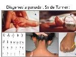 Disgenesia+gonadal,+Sx+de+Turner_