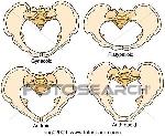 pélvico-tipos-caldwell-moloy-colección-de-ilustraciones__cog02009