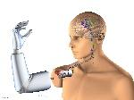 Implante-y-protesis-de-brazo