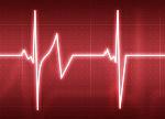 arritmias-cardiacas