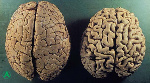 atrofia-cerebral