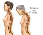 deterioro-del-apoyo-dorsal