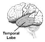temporallobe