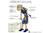 addisons_disease symptoms