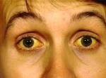 joundise-symptoms1