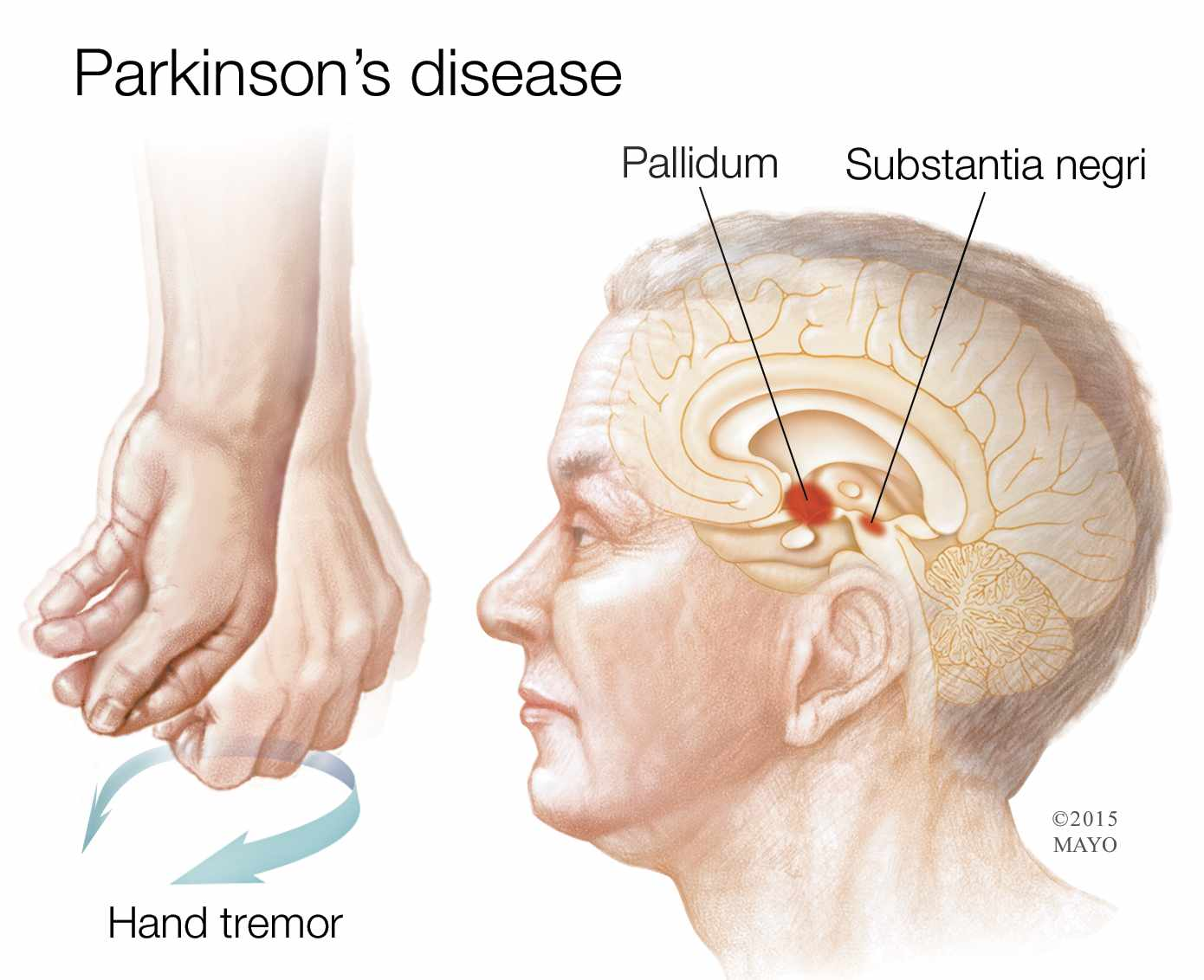 Parkinsons-2