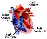 Right Left Heart 1