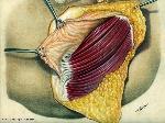 anatomia_quirurgica_29